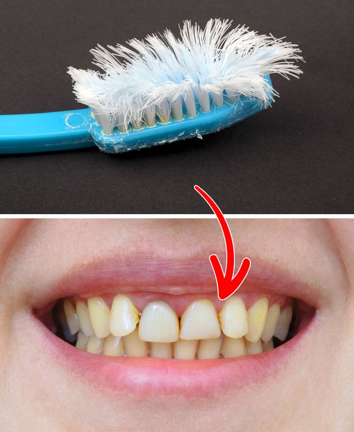 Use of a firm toothbrush