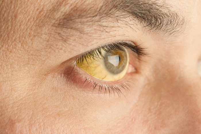 White-eyes and yellowing of the skin