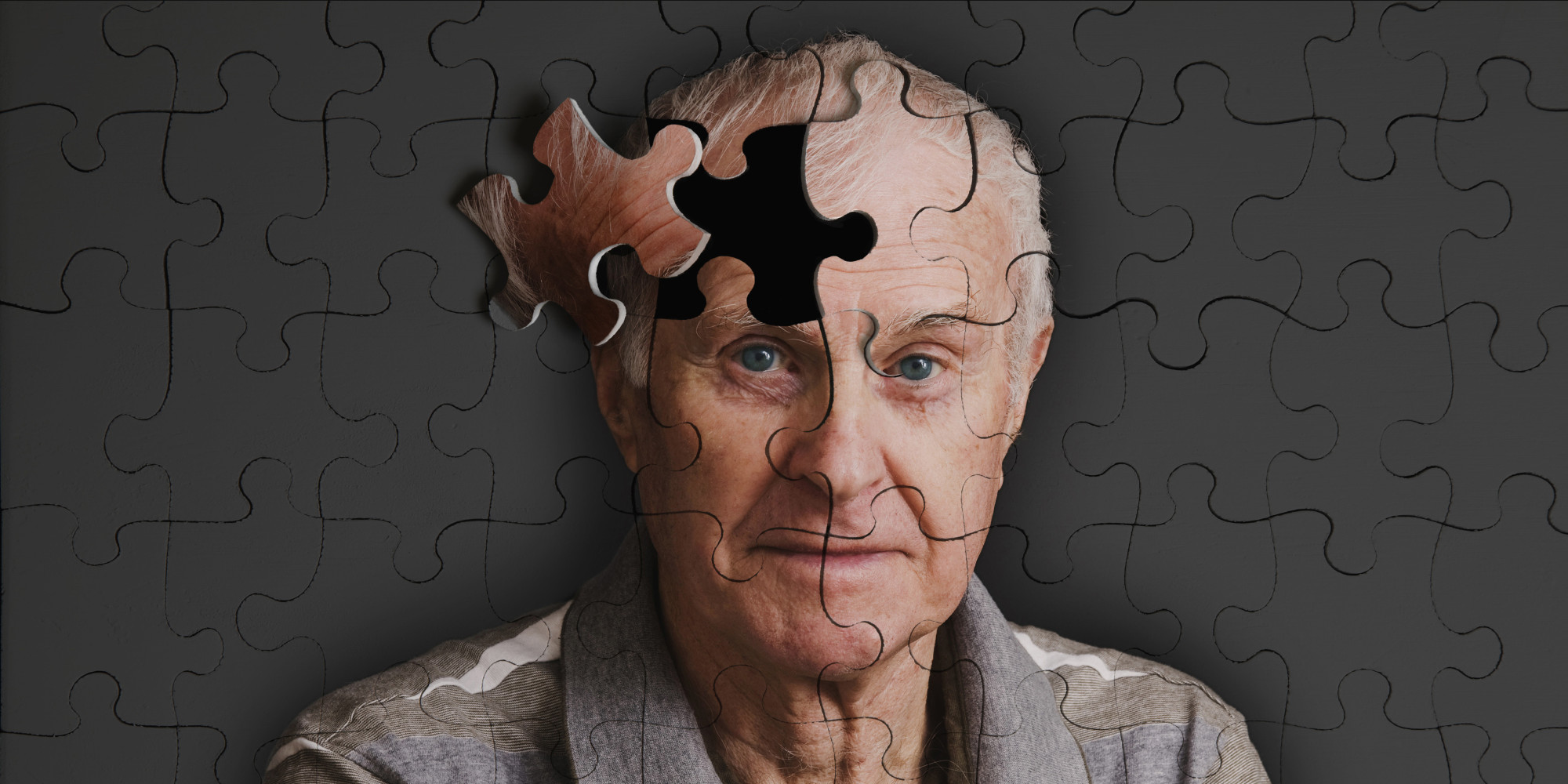 First Major Breakthrough in Alzheimer's Treatment in a Long Time