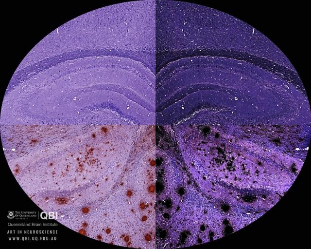 qbi-art-in-neuroscience 1000 × 799
