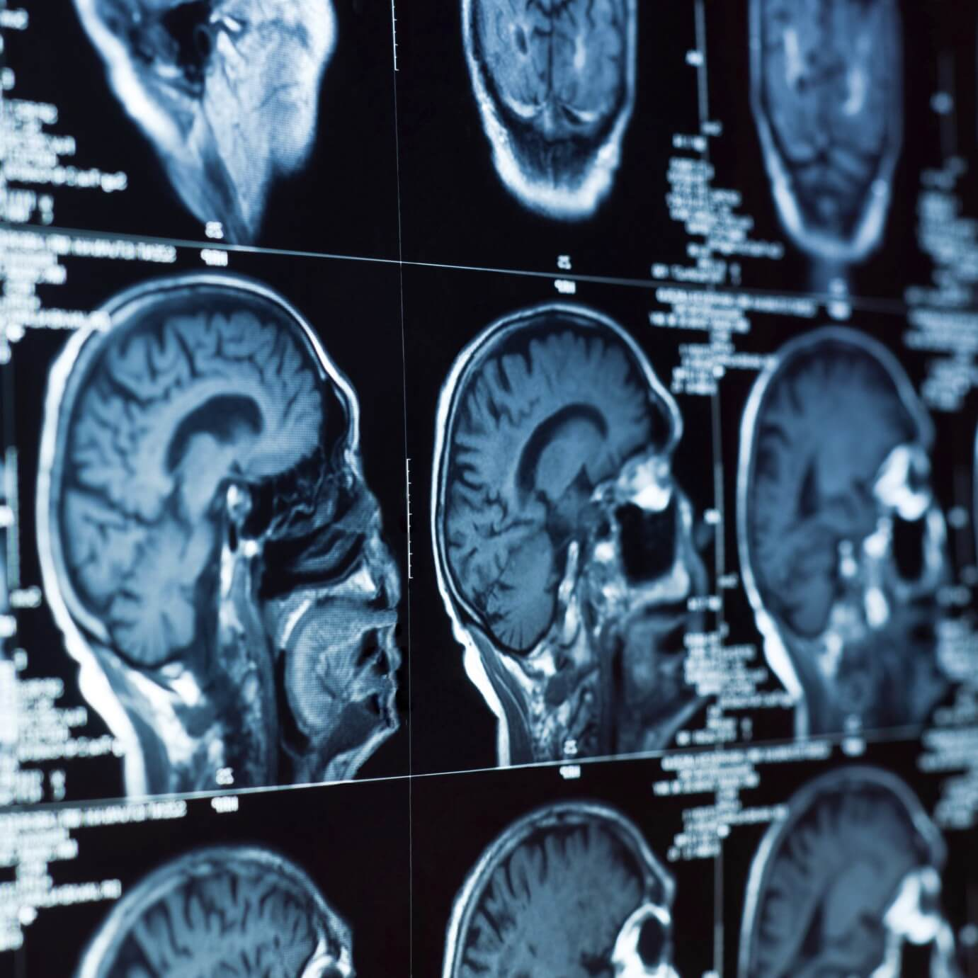 Precision Medicines on the Rise and Give Hope to Kids with Brain Cancer