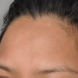 PMD Microderm Review Before and After