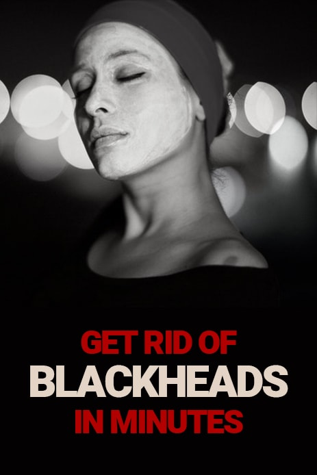 Get Rid Of Blackheads In Minutes