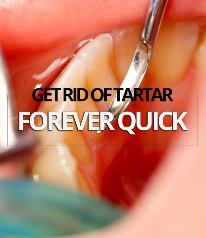 Get Rid Of Tartar Forever Quick