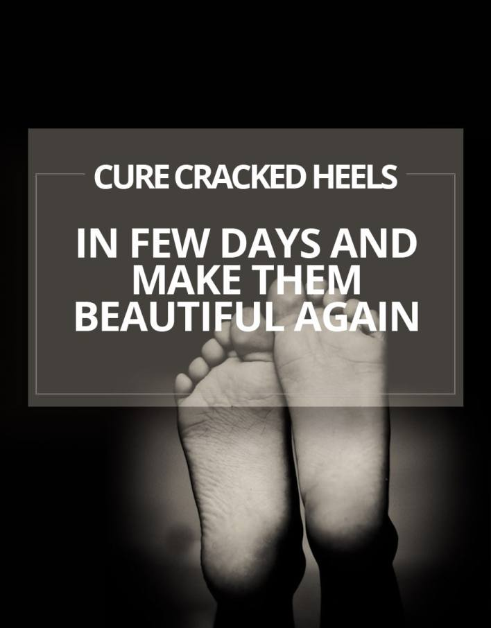 Cure Cracked Heels In Few Days And Make Them Beautiful Again