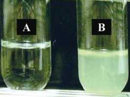 turbid urine