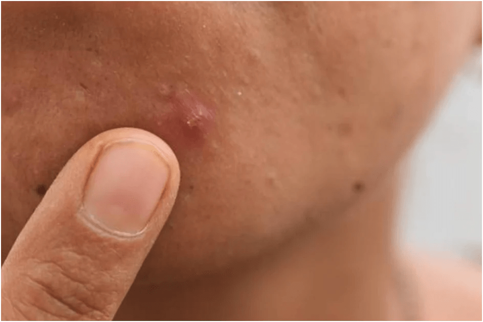 Best home remedies for pimple treatments and acne holes?