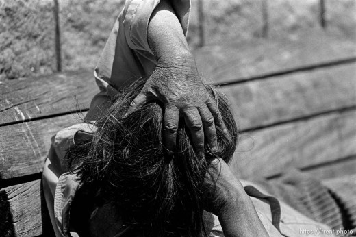 Homeless man's hand on his head