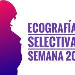 ecografia selectiva . semana 20 1 e1511252975466 - Ecografía selectiva. Semana 20