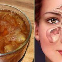 Супер-лек за запушен нос: Ще дишате свободно още на сутринта!
