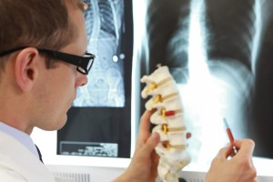 Doctor with model of spine watching radiogram at x-ray film viewer