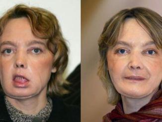 Face transplant patient