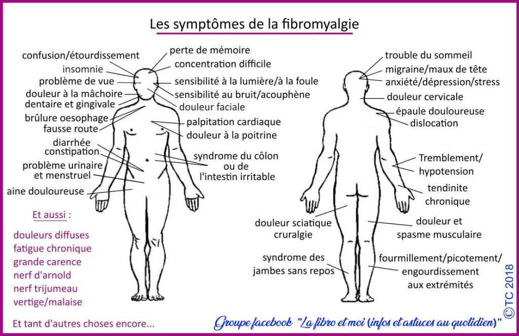 Les symptômes de la fibromyalgie - maladie chronique