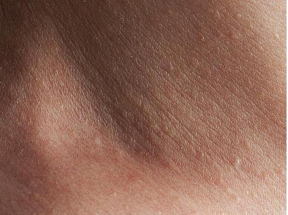 piccole anomalie della pelle
