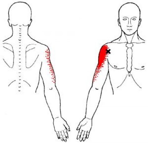 Deltoid muscle trigger points
