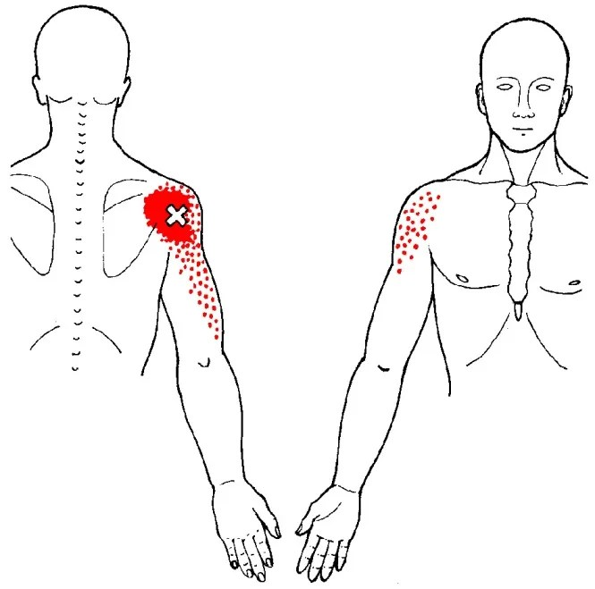 deltoid muscle posterior trigger points