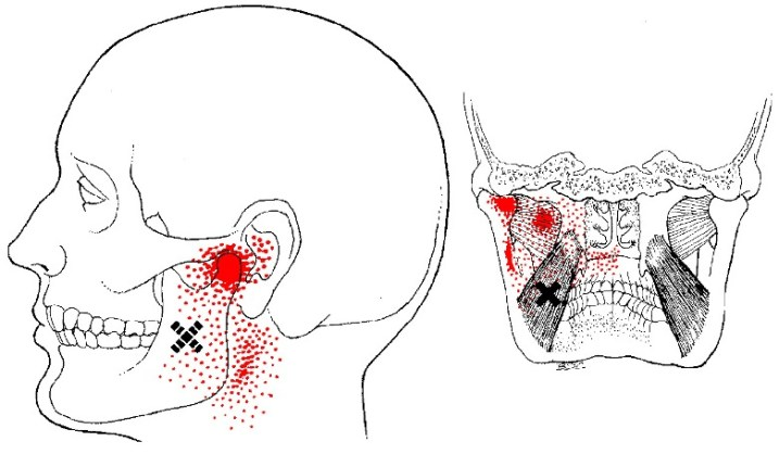 medial pterygoid muscle trigger points