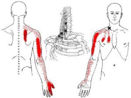 scalene muscle trigger points
