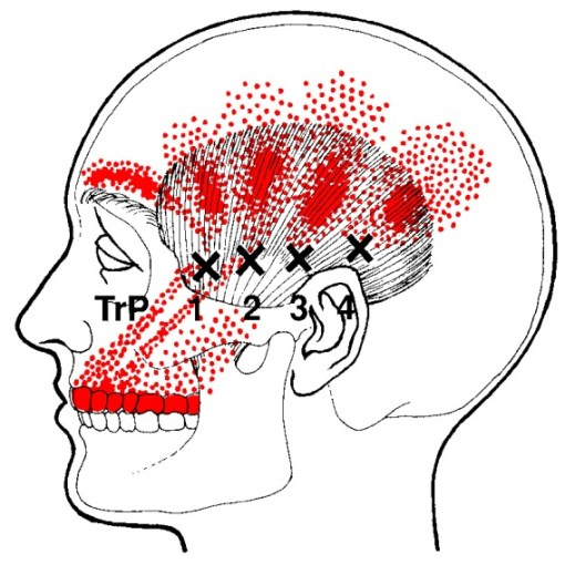 temporalis muscle trigger points