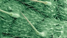 B0006134 Stinging hairs on a nettle leaf Credit: Liz Hirst. Wellcome Images images@wellcome.ac.uk http://images.wellcome.ac.uk The surface of a stinging nettle leaf. The large stinging hairs are hollow tubes with walls of silica making them into tiny glass needles. The bulb at the base of each hair contains the stinging liquid that includes formic acid, histamine, acetylcholine and 5- hydroxytryptamine (serotonin). The tips of the glassy hairs are very easily broken when brushed, leaving a sharp point, which easily pierces the skin to deliver the sting. Scanning electron micrograph 1993 Published: - Copyrighted work available under Creative Commons by-nc-nd 2.0 UK, see http://images.wellcome.ac.uk/indexplus/page/Prices.html