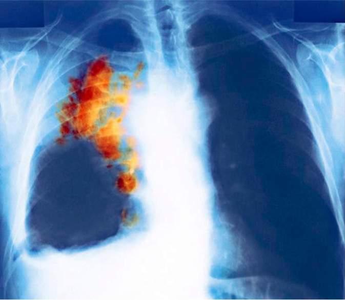 Snimka karcinoma pluća