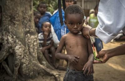 UNICEF: Od šestero djece u svijetu pet je pothranjeno