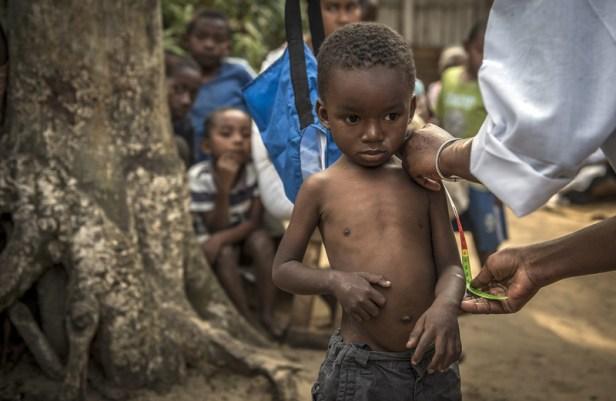 Madagascar Malnutrition UNICEF