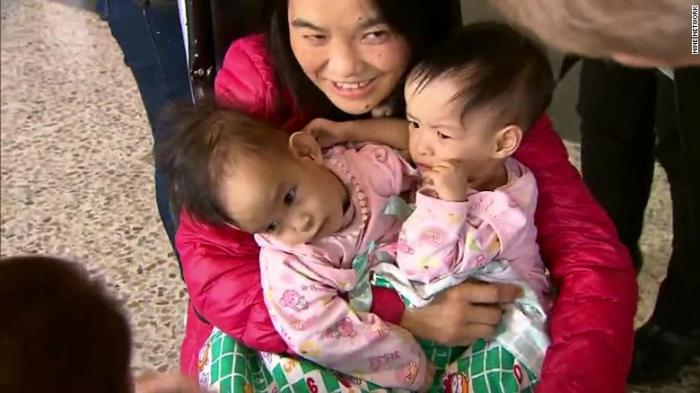 Newly separated conjoined Bhutanese twins leave Melbourne hospital