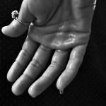 治療手汗問題,先從預防開始!別再放任手汗直直流了!