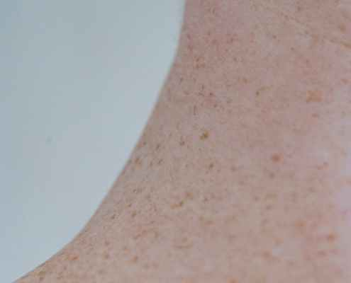 neck of unrecognizable person with pigment spots
