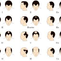 Alopécie, toutes les causes et les symptômes de la calvitie masculine