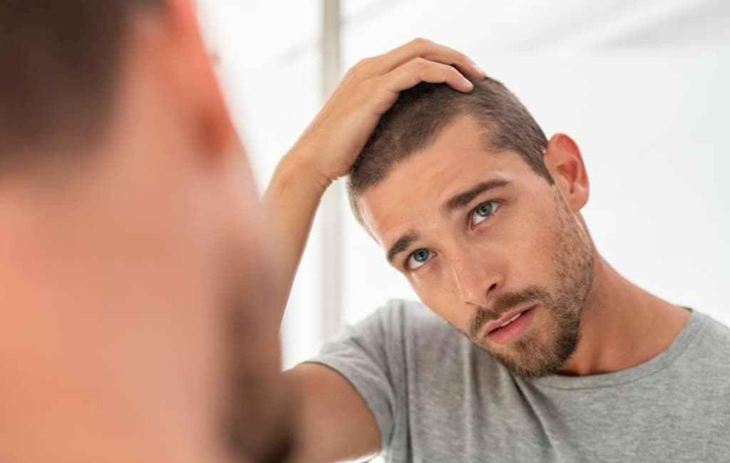 Comprendre la calvitie masculine causes, symptômes et traitements