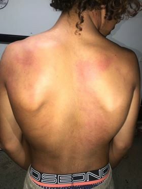 Injuries suffered by Indigenous Boy