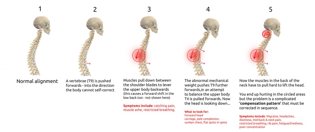 Progression of structural complications with one bone going out of place in a direction the body can not self-correct