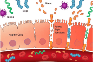 Graphic illustrating both healthy and unhealthy epithelial cells in a leaky gut