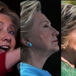 What Happened to Hillary Clinton's Botched, Bruised Face Between Sunday and Today?
