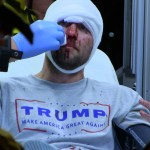 Chicago Torture Not Isolated Incident — Trump Supporters Have Been Violently Attacked All Over The Country
