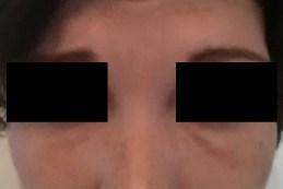 Botox Injections Wilson, NC