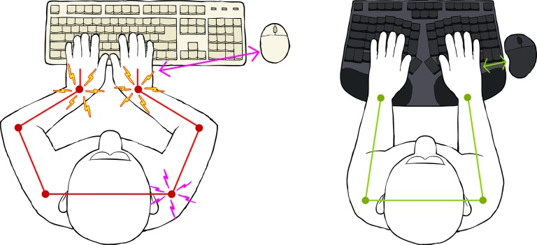 Truly Ergonomic Cleave Reduce Conventional Keyboard Pain