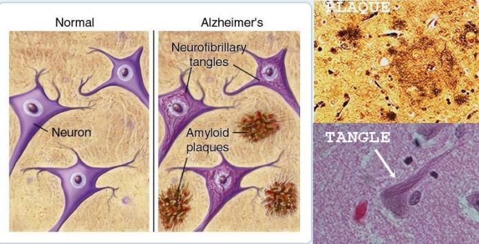תרופה חדשה לחולי דמנציה ואלצהיימר: התרופה בדרך לאישור Aducanumab for Alzheimer's Alzheimer-lesions