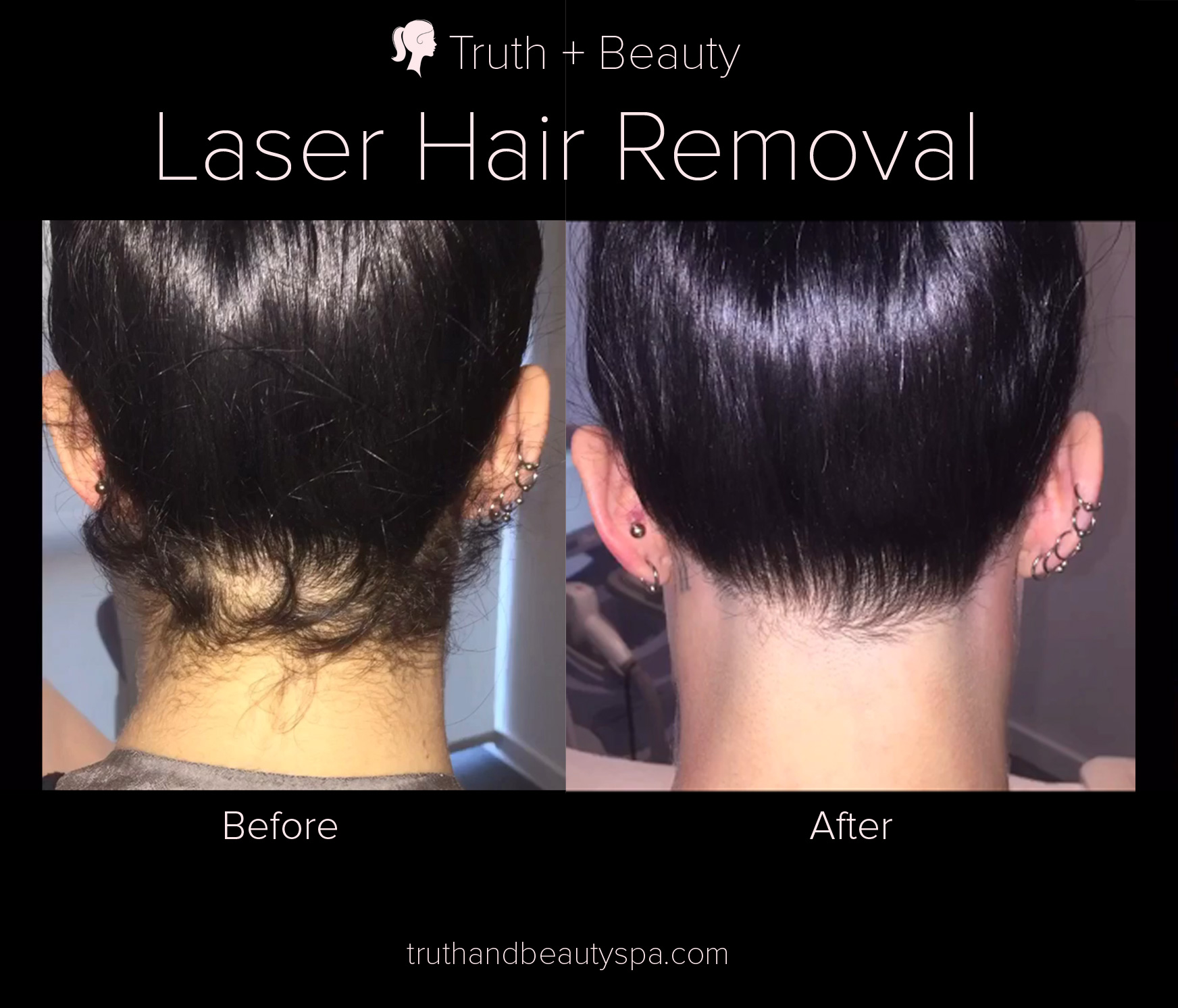 Laser Hair Reduction In New York Truth Beauty Spa