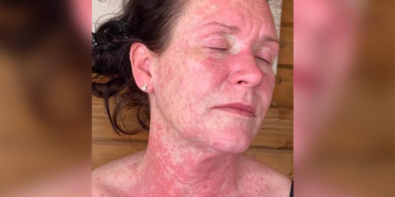 Woman suffers rash after AstraZeneca vaccine