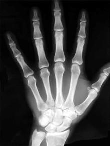 современная рентгенограмма кисти руки