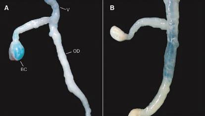 Сперма после спаривания должна попасть туда же, куда в эксперименте проникает краситель. У улиток, которых слизью не кололи, окрашен гаметолитический семяприемник (BC); у моллюсков, получивших инъекцию слизи — яйцевод (OD). Фото из [3]