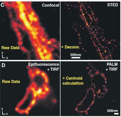 Рис. 2. Примеры реализации методов STED и PALM (справа) в сравнении с классическими методами микроскопии (слева) при визуализации клеток млекопитающих.