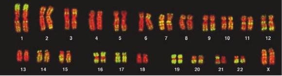 Локализация мобильных элементов ALU в ядрах лимфоцитов. Зеленым цветом выделены ALU-последовательности; красным — участки хромосом, закрашенные для контраста флуорисцентным красителем