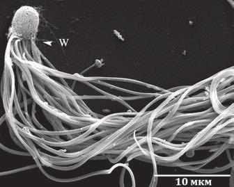 Рис. 3. Сперматозоиды муравьев-бегунков Cataglyphis savignyi. Электронная микрофотография [Pearcy et al., 2014]
