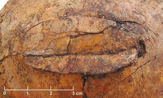 Рис. 2. Фрагмент черепа ребенка 3–5 лет с непроникающей травмой левой теменной кости, нанесенной тупым орудием (Meyer et al., 2015)