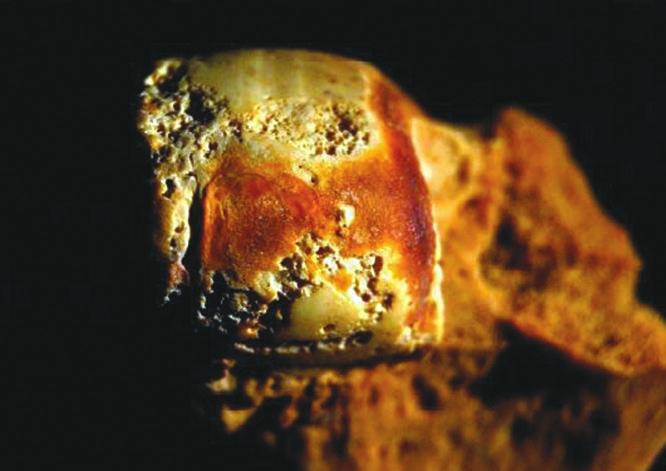 Следы остеоартрита на среднем мыщелке женской бедренной кости (Austin, 2016)