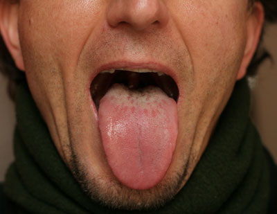 The Importance of the Tongue in Traditional Chinese Medicine | Try ...